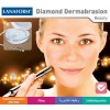 Diamond dermabrasion
